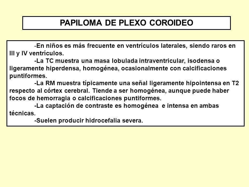 PAPILOMA DE PLEXO COROIDEO - ppt descargar