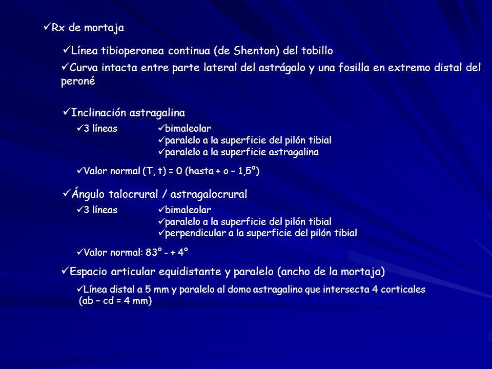FRACTURAS DEL TOBILLO Y LESIONES DE LA SINDESMOSIS - ppt video ...