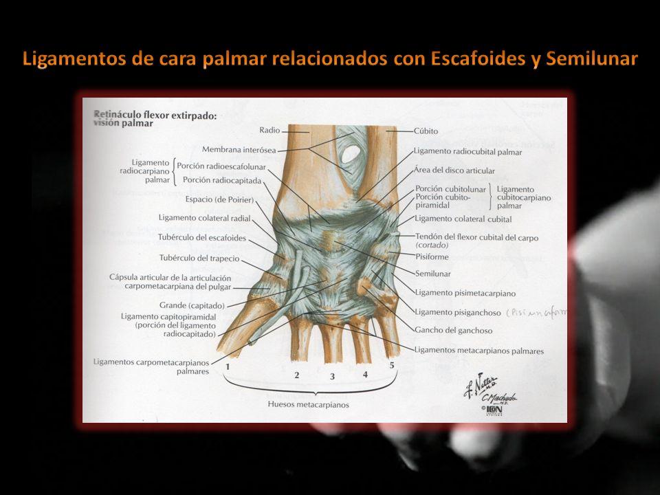 FRACTURAS DEL ESCAFOIDES LUXACIONES DEL SEMILUNAR - ppt video online ...