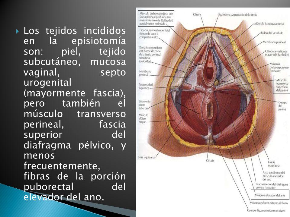 Episiotomía MIP Marco Vinicio Gálvez Mendoza. - ppt video online ...