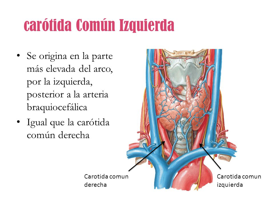 Sistema Arterial. - ppt video online descargar