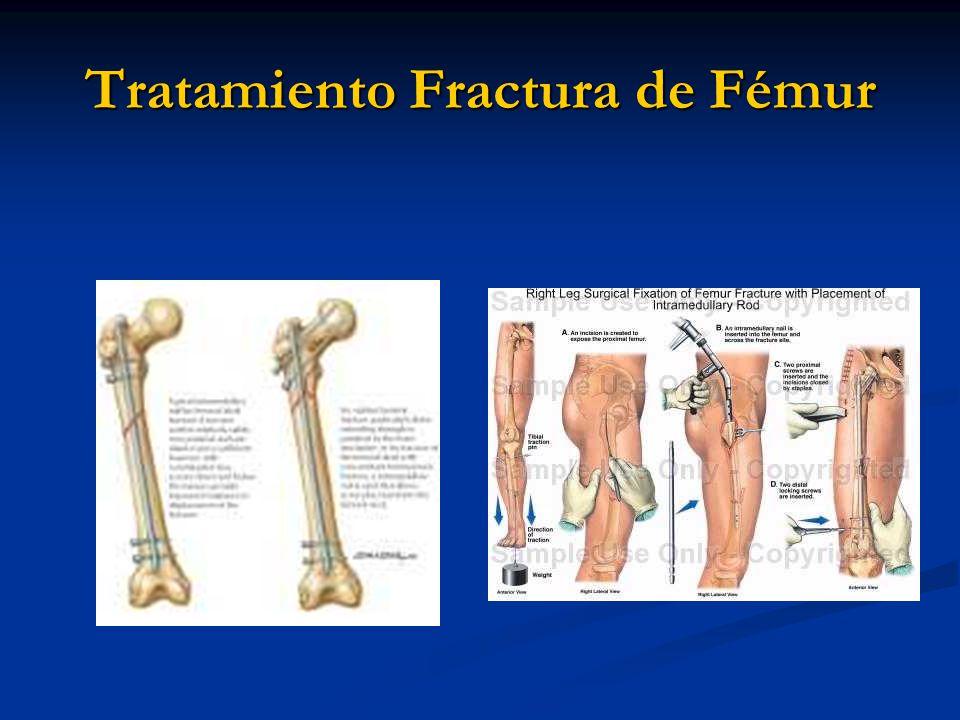 Fracturas de Fémur Dr. Alfredo Donoso Barros - ppt video online ...