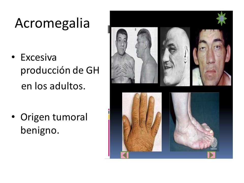 Enfermedades del sistema endocrino.