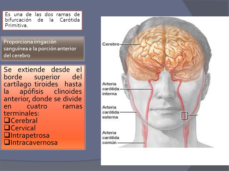 ARTERIAS CAROTIDAS. - ppt video online descargar