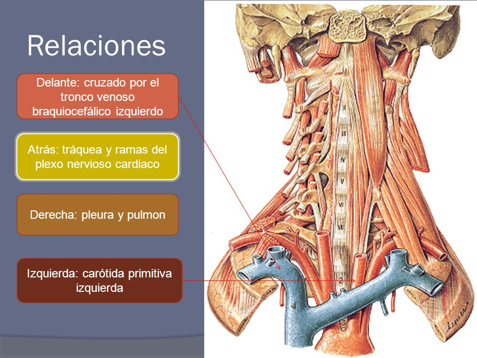 ARTERIAS CAROTIDAS. - ppt video online descargar
