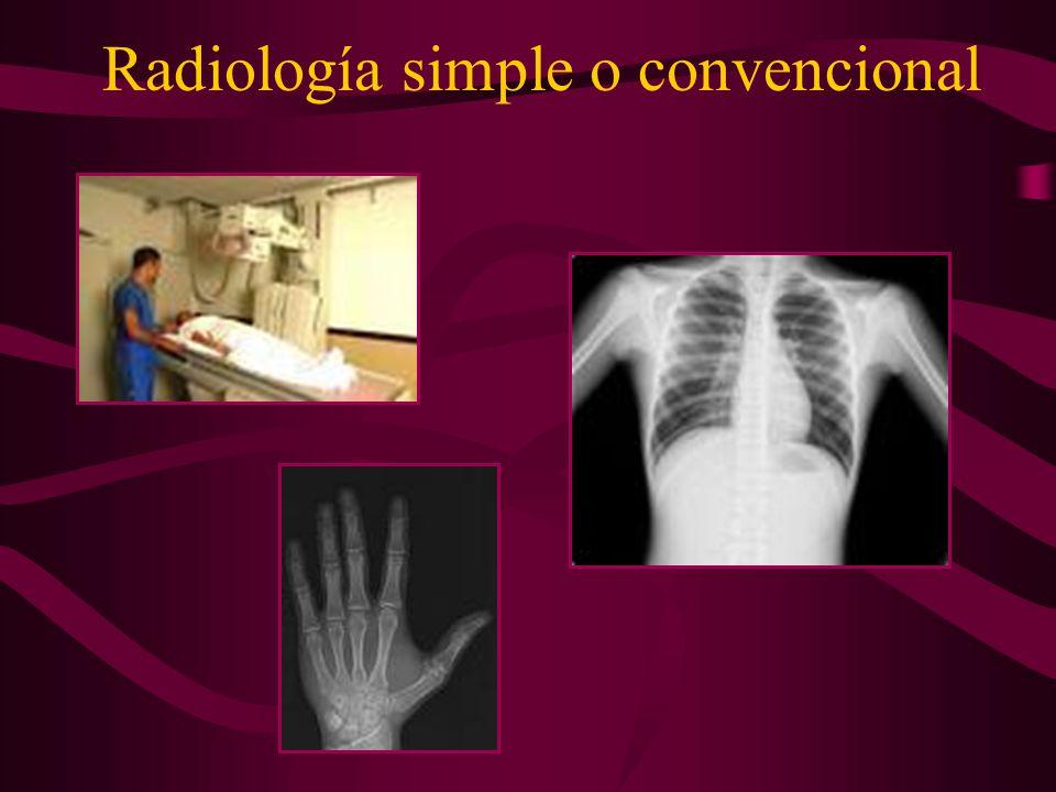 Anatomía radiológica Dra. Bagdonavicius, M. Julia - ppt video online ...