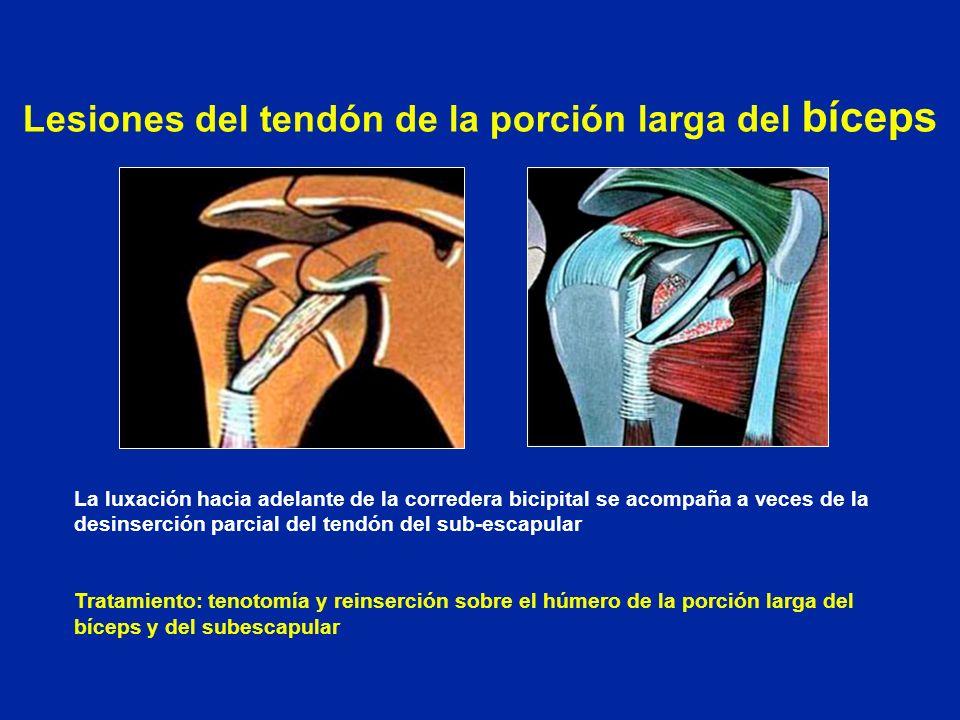 Perfecto Bíceps Anatomía Rizo Motivo - Imágenes de Anatomía Humana ...
