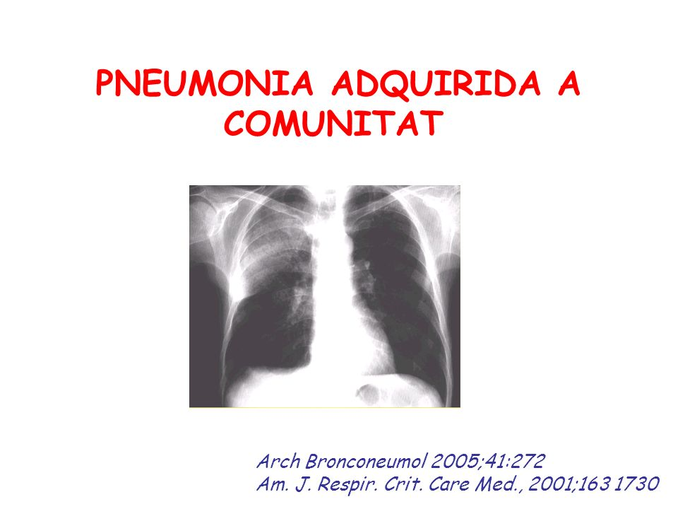 PNEUMONIA ADQUIRIDA A COMUNITAT