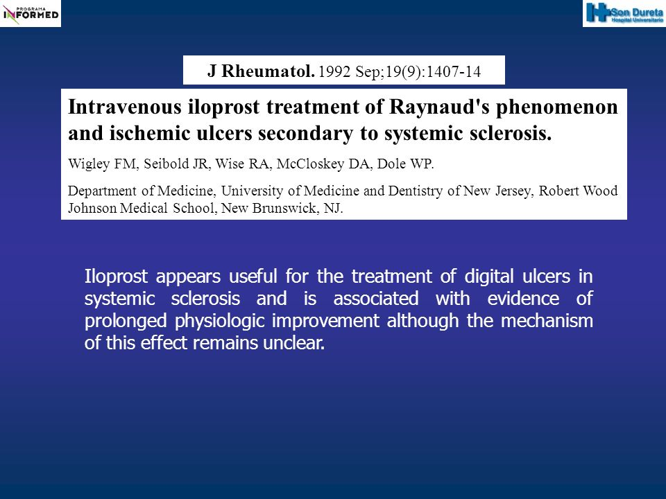 J Rheumatol. 1992 Sep;19(9):1407-14 Intravenous iloprost treatment of Raynaud s phenomenon and ischemic ulcers secondary to systemic sclerosis.