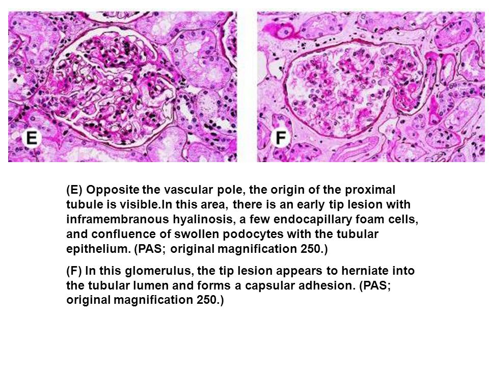 (E) Opposite the vascular pole, the origin of the proximal tubule is visible.In this area, there is an early tip lesion with inframembranous hyalinosis, a few endocapillary foam cells, and confluence of swollen podocytes with the tubular epithelium. (PAS; original magnification 250.)