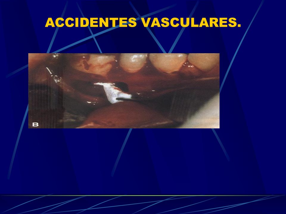 ACCIDENTES VASCULARES.