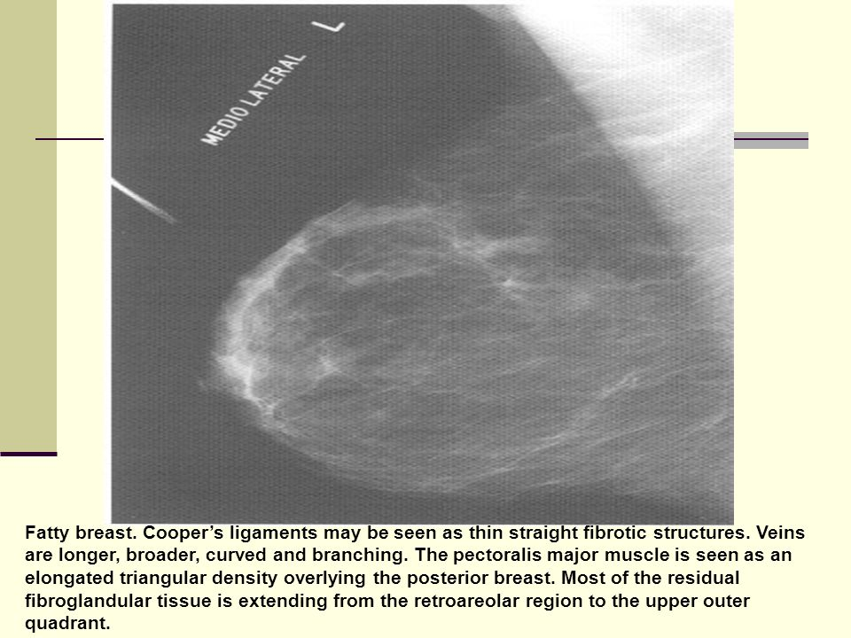 Fatty breast. Cooper's ligaments may be seen as thin straight fibrotic structures.