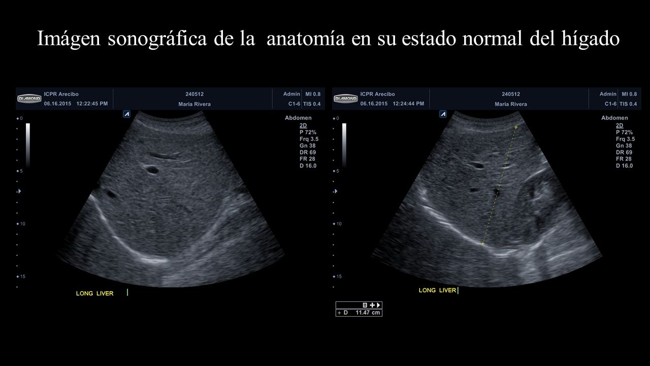 Patología del Hígado María L. Rivera Vélez Johanna Delgado Rodríguez ...