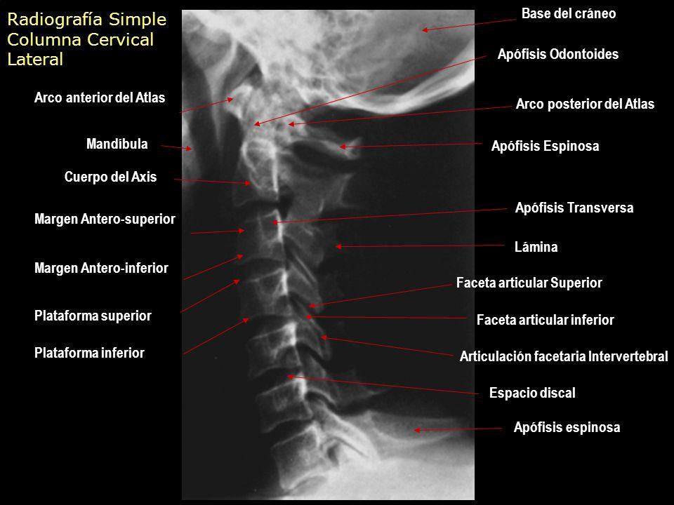 Patología degenerativa de la columna - ppt video online descargar