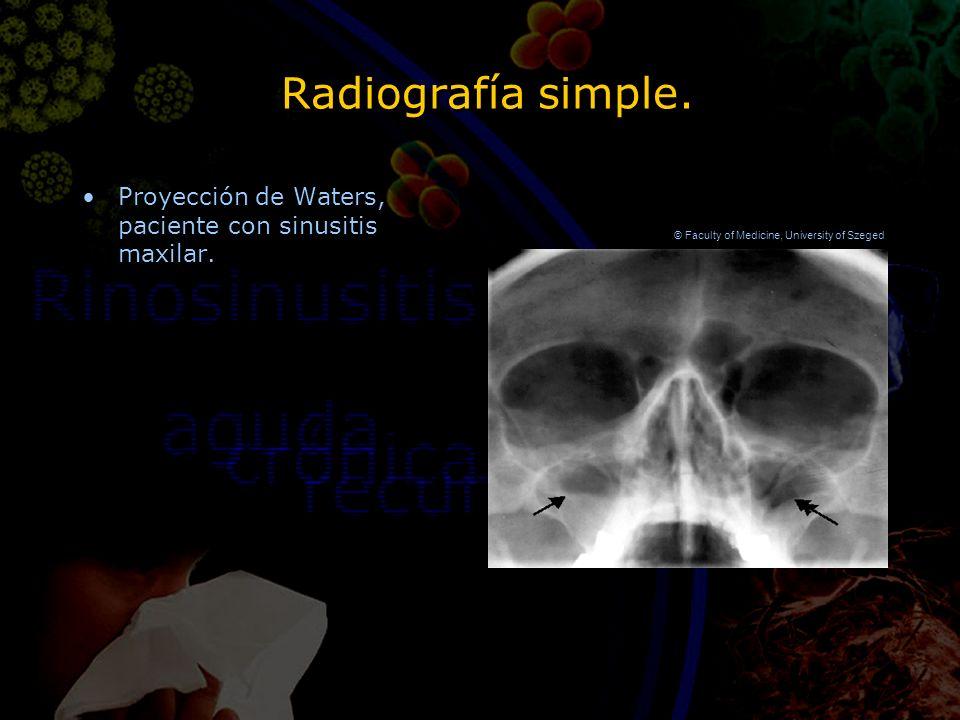 Diagnóstico de rinosinusitis en atención primaria. - ppt descargar