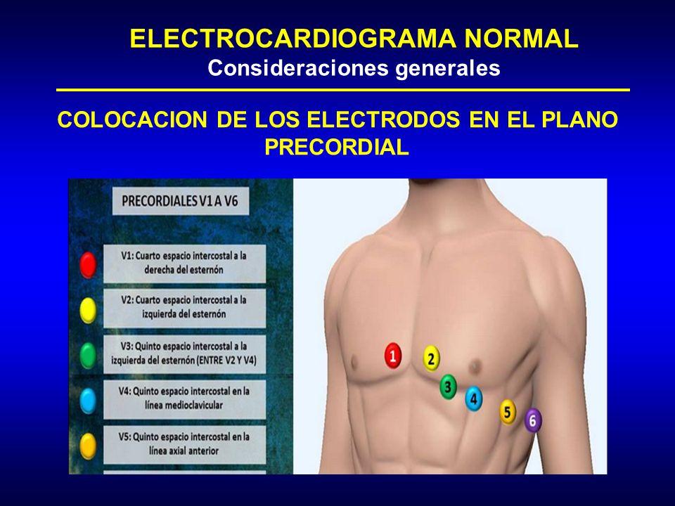 Electrodos Del Electrocardiograma Como Poner Los Electrodos Para Un Electrocardiograma