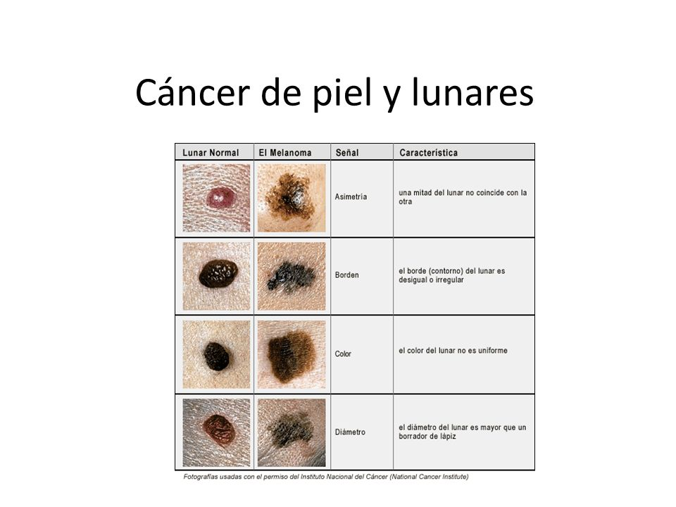 Lujo Anatomía Lunar De La Piel Imagen - Anatomía de Las Imágenesdel ...