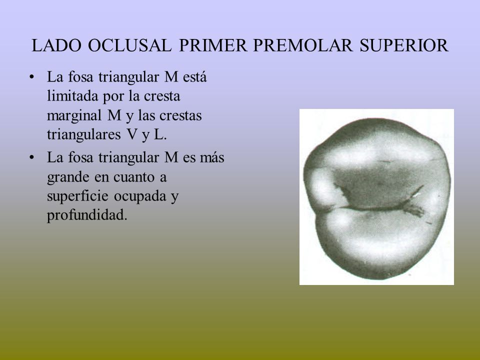 PRE MOLARES SUPERIORES - ppt video online descargar