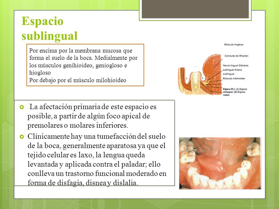 La infección odontogénica - ppt descargar