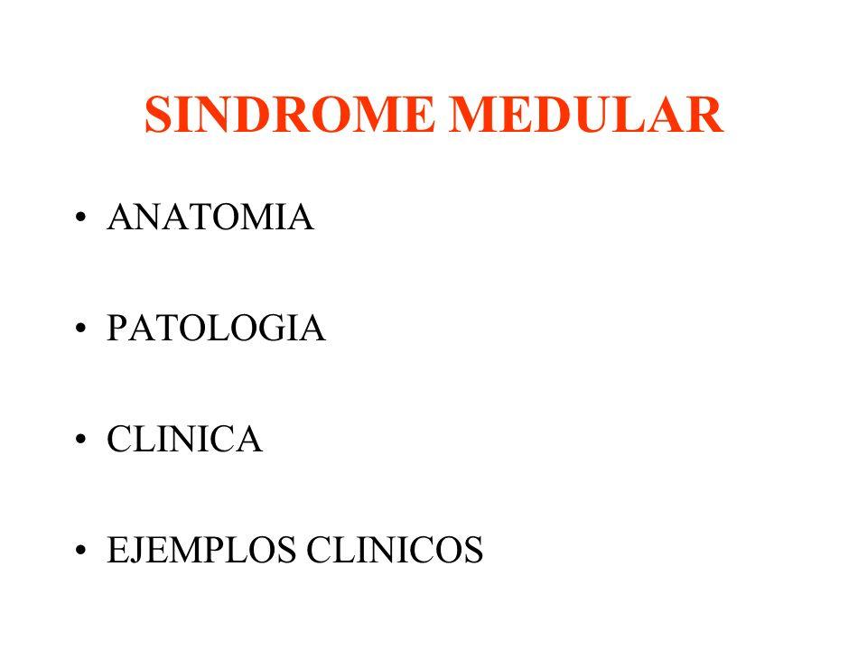 SINDROME MEDULAR En una área pequeña hay importantes vías sensitivas ...