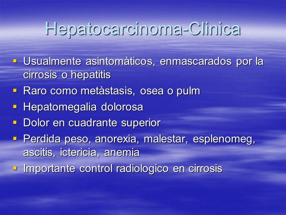 Hepatocarcinoma y perdida de peso