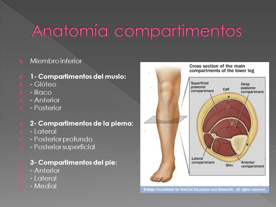 SINDROME COMPARTIMENTAL - ppt video online descargar